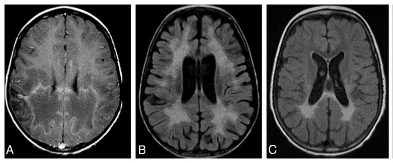 Tay Sachs Brain Vs Normal Brain